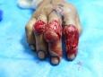 烧伤整形外科行第二掌背动脉穿支皮瓣修复食指指背软组织缺损