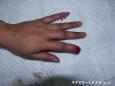 烧伤整形外科行邻指皮瓣修复指端缺损