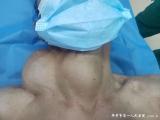 欧美Av|欧美巨乳|欧美群交|欧美人曽交流|色爱综合网欧美av甲状腺乳腺外科手术成功解决一老人无法正常进食问题