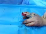 毕节市第一人民医院烧伤整形外科完成第二掌背动脉穿支皮瓣接力中指指固有动脉背侧穿支皮瓣修复中指创面