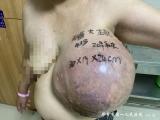 毕节市第一人民医院甲状腺乳腺外科为一患者切除巨大乳腺恶性叶状肿瘤