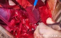 毕节市第一人民医院心胸血管外科成功抢救一名右主支气管断裂昏迷患者